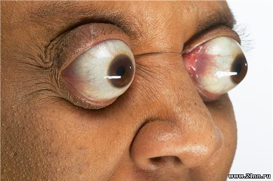 Самые большие глаза мира у людей